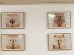 Uterus Vesalius. Amaia Fernández. Campus Clínic